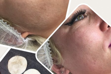 Dermaplaning facial, Chesterfield, The Nail and Beauty Lounge
